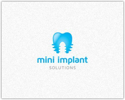 Mini-Implant-Solutions