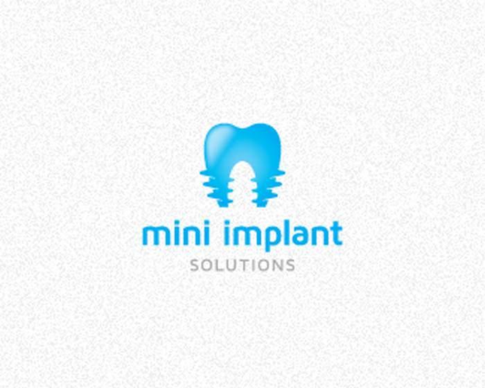 Mini Implant Solutions